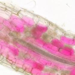 Read more at: Researchers visualise for the first time the colonisation of plant roots by fungi in real time